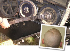 Brain Injury caused by defective tractor part