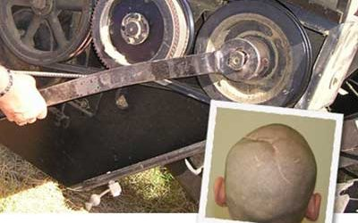 Defective Farm Equipment Causes Brain Damage