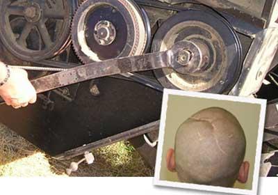 Defective Farm Equipment Causes Brain Damage